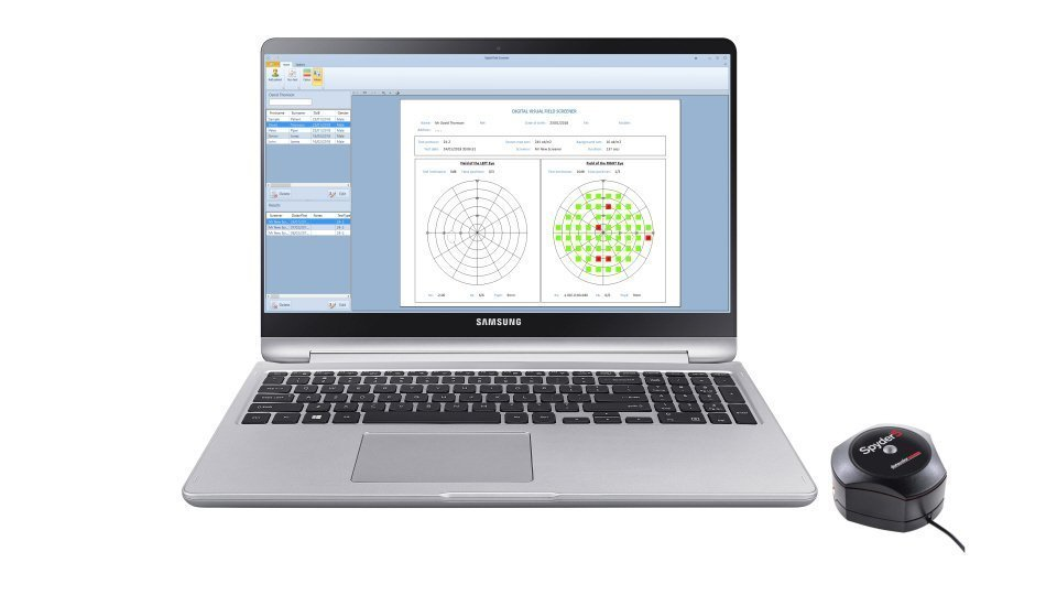 Digital Visual Field Screener - Thomson Software Solutions